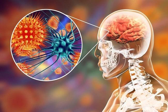Virus Nipah Yang Belum Ditemukan Vaksinnya